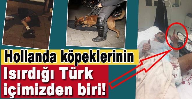 Holanda köpeklerinin ısırdığı Türk, içimizden biri!