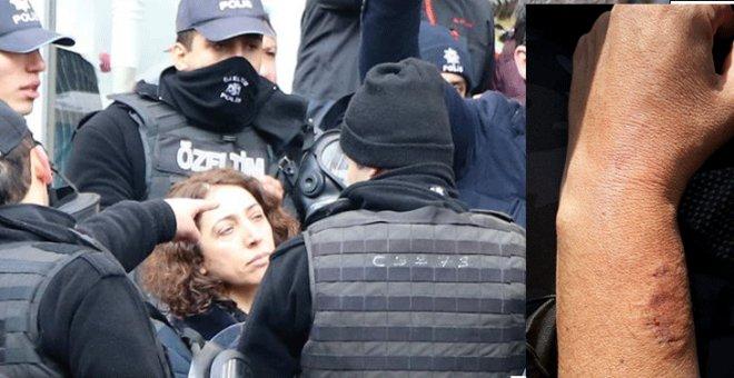 HDP'li vekil, polisin kolunu ısırdı...