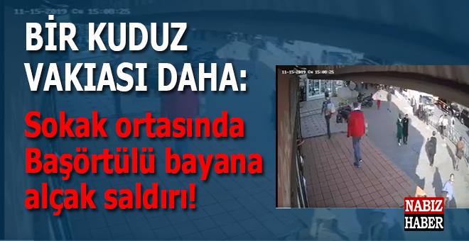 Sokak ortasında başörtülü kıza saldıran kuduz gözaltına -karantinaya-alındı!