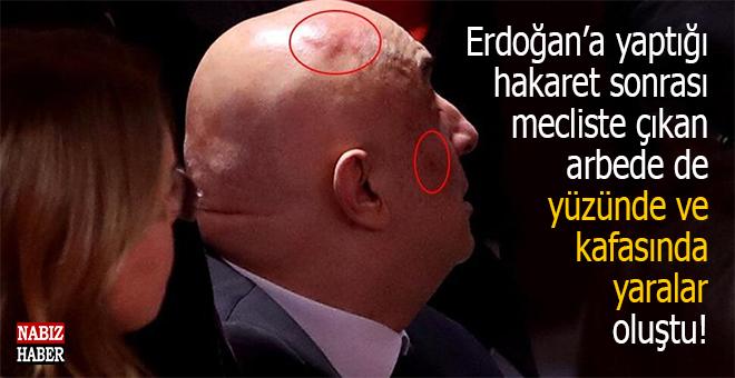 Cumhurbaşkanı Erdoğan'a yaptığı hakaret sonrası çıkan arbede de kafasında ve yüzünde yaralar oluştu!