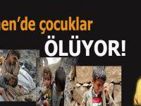 Ufuk Coşkun: Yemen'de çocuklar ölüyor!